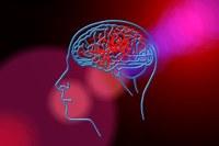 Ictus cervello ischemia cerebrale