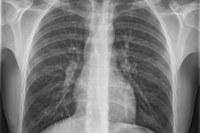 Radiografie, raggi x, polmoni